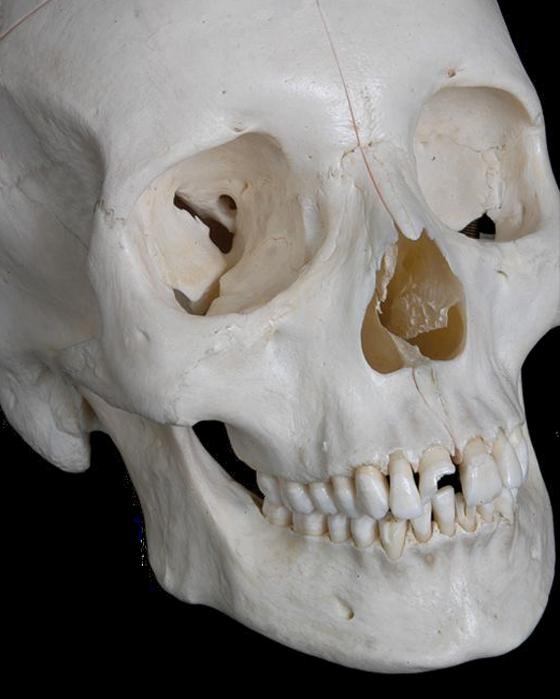 Anatomy Pathways Facial Bones