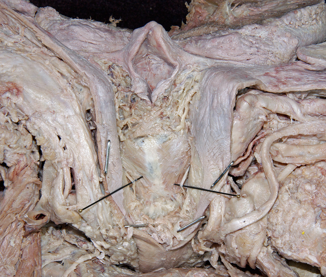 http://www.vhdissector.com/lessons/cadaver-dissection-guide/head-and-neck/dissections-a/oral-cavity-pharynx-and-larynx/images/2014_135.jpg Arytenoid