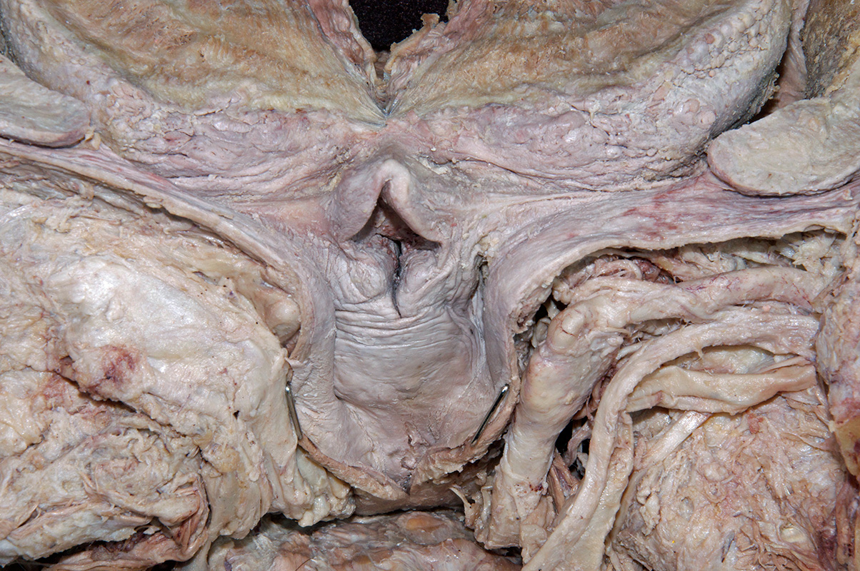 http://www.vhdissector.com/lessons/cadaver-dissection-guide/head-and-neck/dissections-a/oral-cavity-pharynx-and-larynx/images/2014_136.jpg Arytenoid