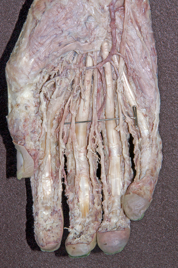 Upper Extremities