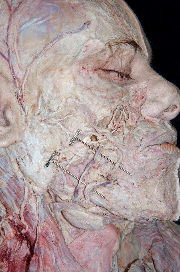 Zygomaticotemporal Foramen Head and Neck