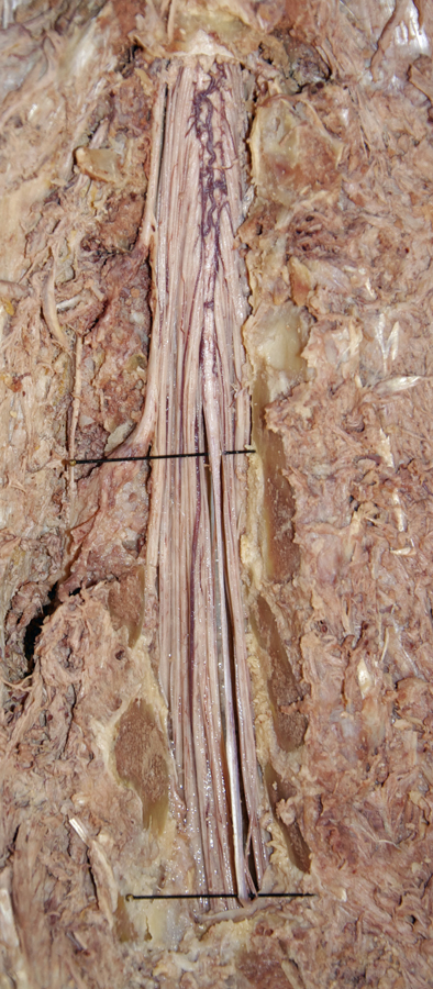 Back Filum terminale information including symptoms, causes, diseases, symptoms, treatments, and other medical and health issues. back