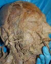 Transverse Cervical Artery Cadaver